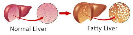 fatty acid liver